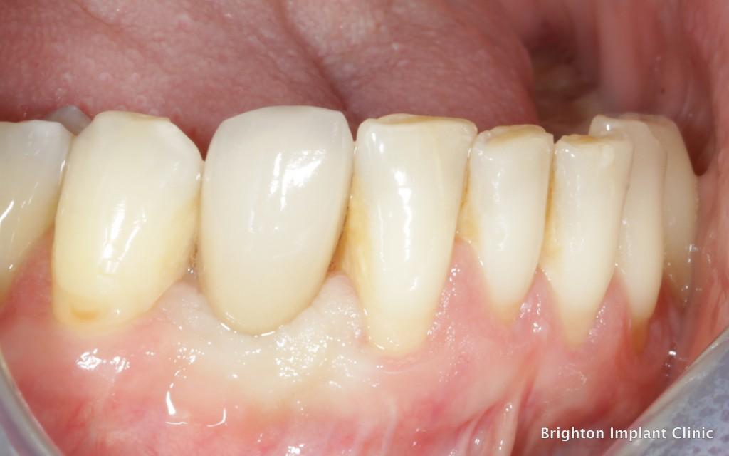 porcelain crown on dental implant