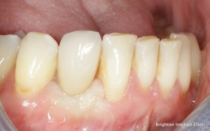 dental bone implants