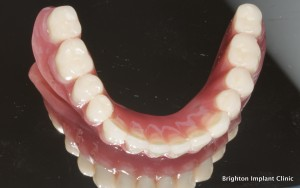 dental implant denture cost for the lower jaw is £2500