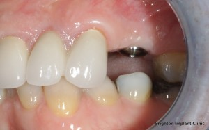 Dental Implants In One Day