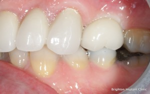 implant dentistry showing restored space