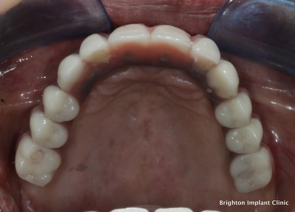 teeth on 4 dental bridge in place