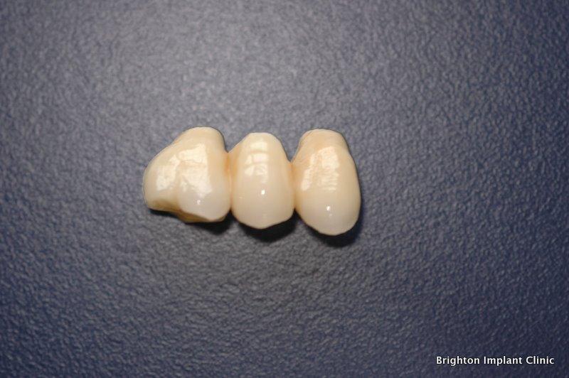 Dental Bridge Vs Implant Brighton Implant Clinic