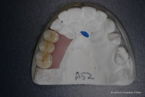 cost for teeth implants in this case was about £750 per tooth