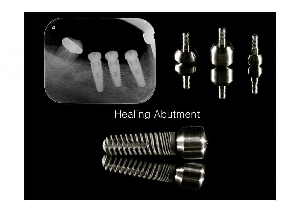 dental implants placed, an example of cheapest dental implants