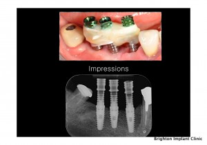 Dental Implants Abroad