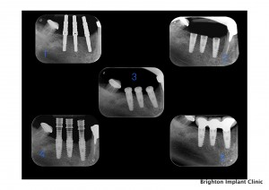 radio-graphs of dental implant treatment