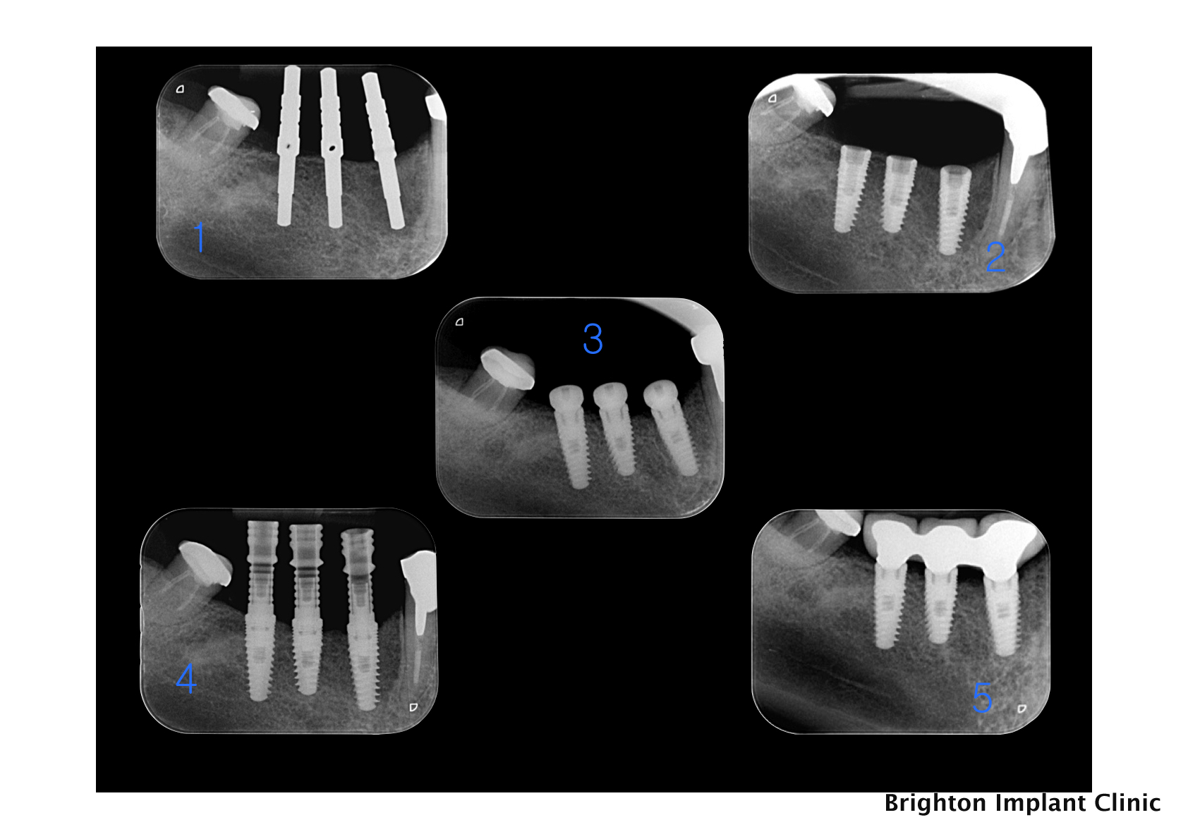 radiographs of dental implant treatment