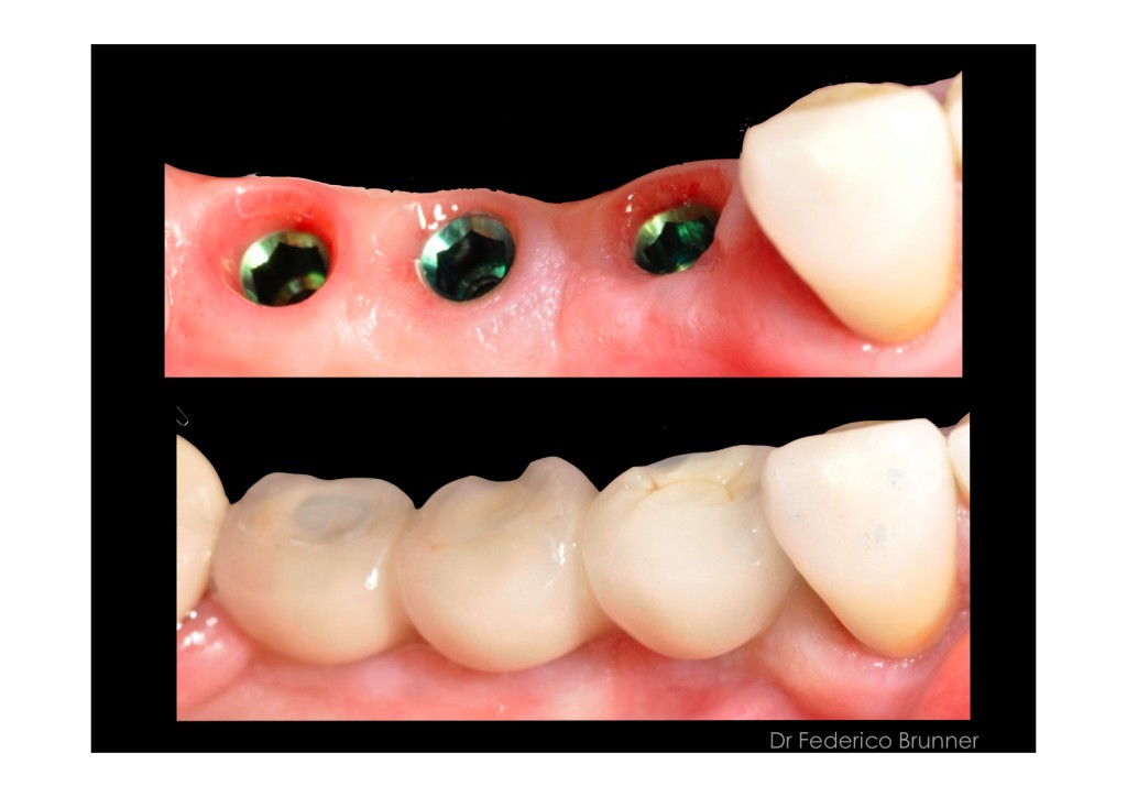 dental implants on lower right side