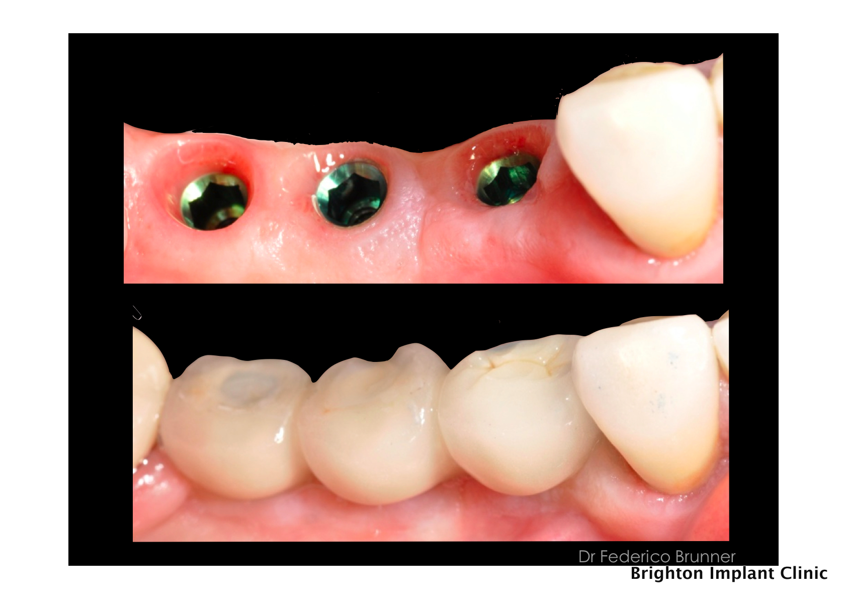 Pros and cons of dental prosthetics 11