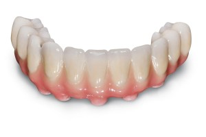 How Does Dental Bridge Work?