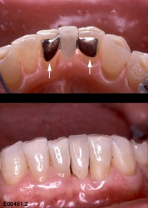 resin bonded dental bridge