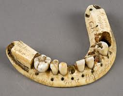set of historic false teeth