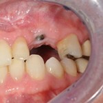gum tissues healed around healing abutment dental implant during healing phase