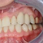 completed porcelain bridge on implant 2 unit bridge on dental implant