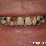 advanced gum disease showing patient with gaps and mobile teeth