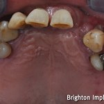 patient who was suffering from gum disease had already lost several teeth
