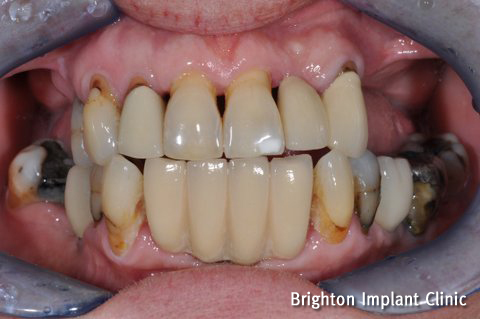 mobile upper teeth affected by gum disease before teeth on 4