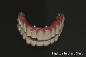 all on 4 bridge using acrylic teeth and titanium substructure