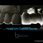 Hailsham dental implants Clinical excellence in dental implants