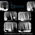 Series of radiographs showing dental implant treatment in sequence