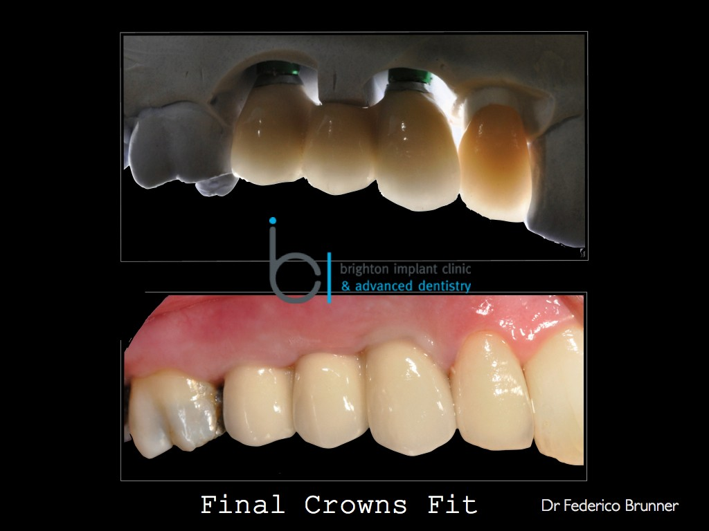 Final result showing a 3 unit bridge on implants plus full ceramic crown on upper right lateral incisor