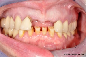 clinical case of missing front teeth