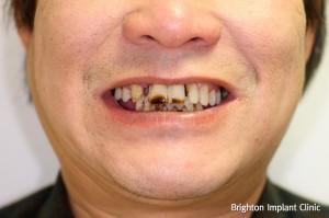 Dental implants help smokers get teeth back