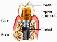 what makes up a dental implant