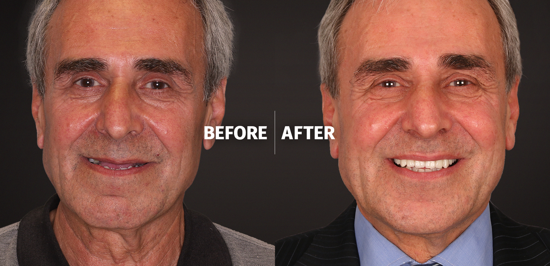 Before and after all on 4 photos
