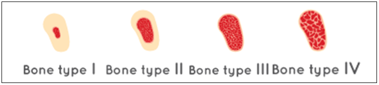 different types of bone