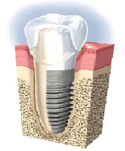Dental Implants Fixed in the Jawbone