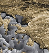 Titanium surface (grey) and intricate bone tissue