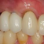 cantilever bridge on implants