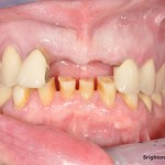 Missing teeth required dental implant treatment