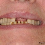 Missing teeth while lips at rest