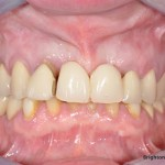 Poorly fitting removable denture in place