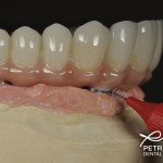 hygiene under implant bridge