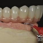 hygiene under implant bridge