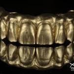 gold powder used in dental laboratory