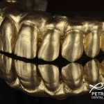 zirconia bridge with gold powder