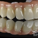final all on 4 zirconia bridge