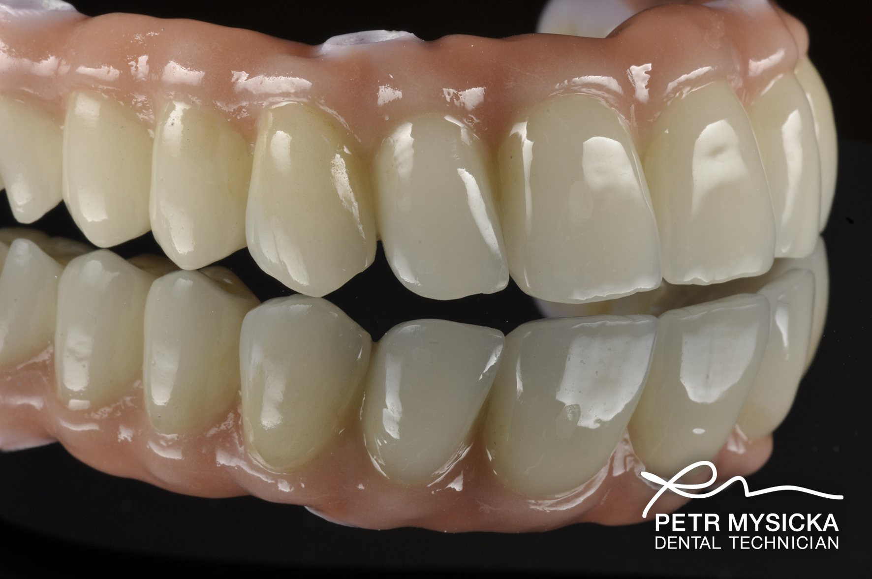 Zirconia All On 4 Bridge Brighton Implant Clinic