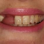 missing teeth before implant treatment