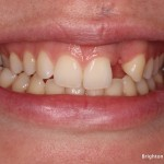 Missing tooth upper left lateral incisor