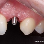Gum tissues healed around provisional crown
