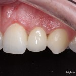 Definitive implant crown completed