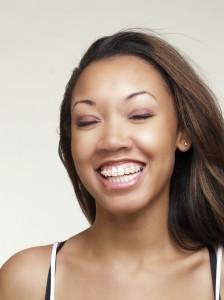 Cosmetic Orthodontic Braces