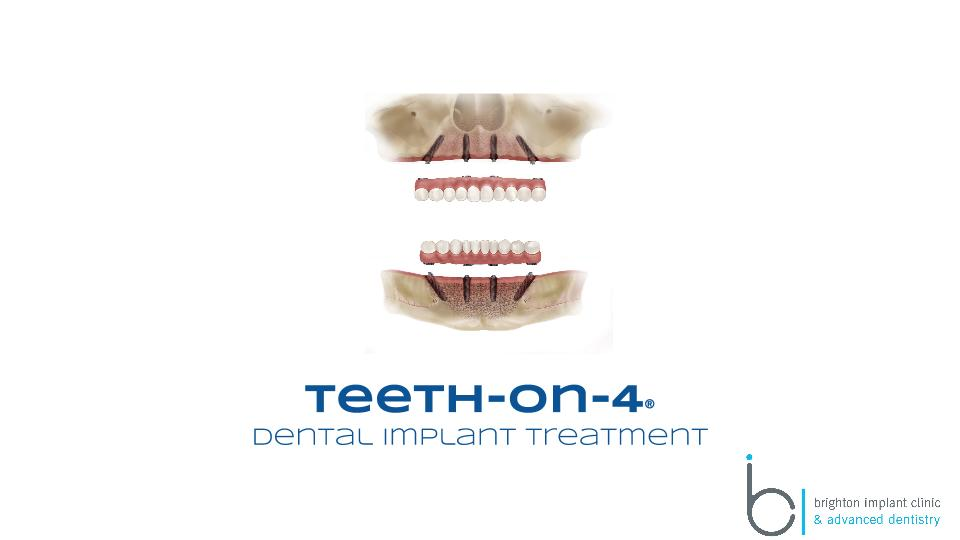 Teeth-on-4 dental implant solution