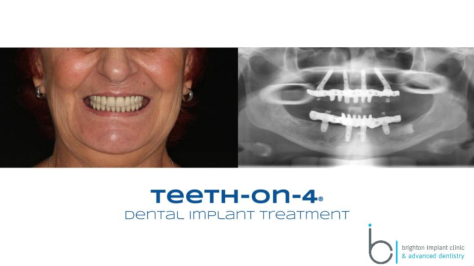dental implant bridge on 4 implants